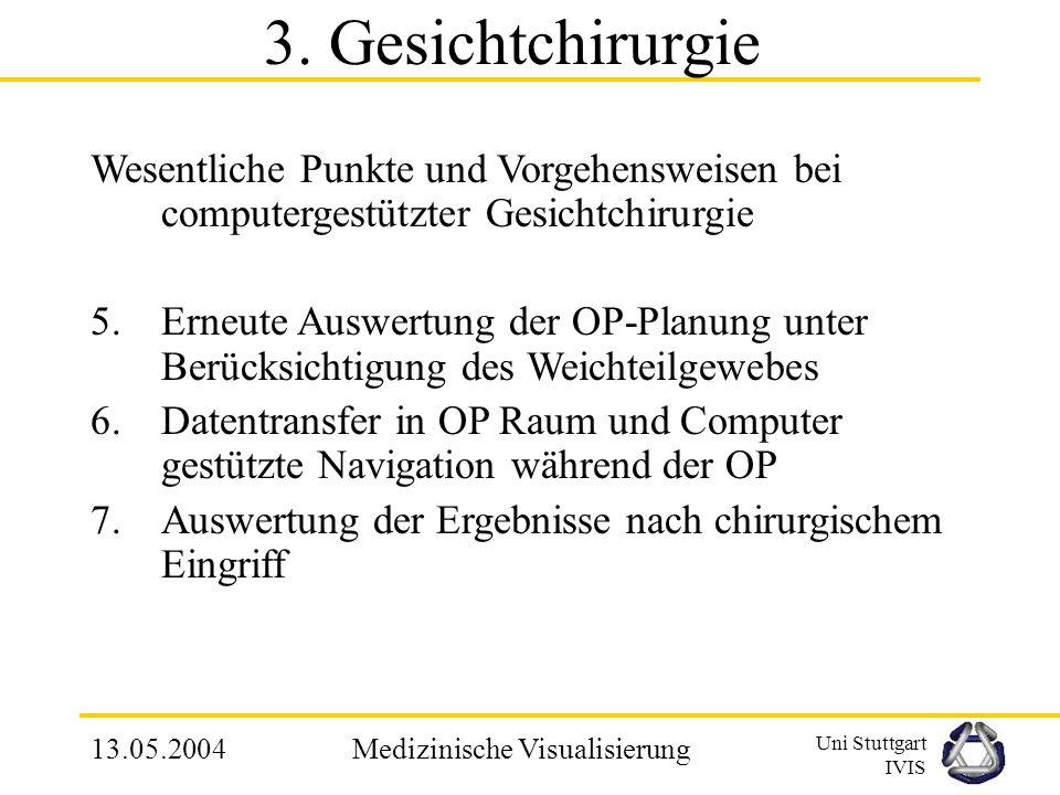 Uni Stuttgart IVIS 13.05.2004Medizinische Visualisierung Wesentliche Punkte und Vorgehensweisen bei computergestützter Gesichtchirurgie 1.Datenbeschaf