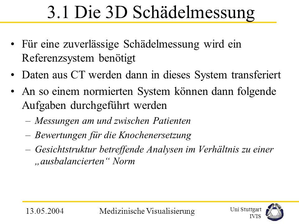 Uni Stuttgart IVIS 13.05.2004Medizinische Visualisierung 3. Gesichtchirurgie Schädel Modell für Patienten mit neuem Ansatz realisiert –Man generiert d