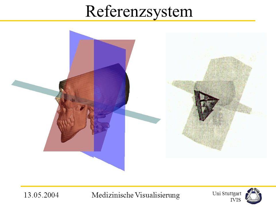 Uni Stuttgart IVIS 13.05.2004Medizinische Visualisierung 3.1 Definieren eines Referenzsystems Vorschlag: Invariantes, Reproduzierbares und orthogonale