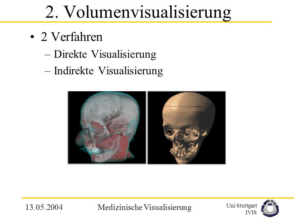 Uni Stuttgart IVIS 13.05.2004Medizinische Visualisierung 3.1 Definieren eines Referenzsystems Vorschlag: Invariantes, Reproduzierbares und orthogonales Referenzsystem aus 3 Ebenen –Horizontale Ebene, verläuft durch anatomische Fixpunkte: linke und rechte Gehörknöchelchen und dem Mittelpunkt zwischen dem oberen Teil der Augenhöhle –Sagital und Frontal-Ebene sind orthogonal zur horizontalen Ebene und beinhalten den Mittelpunkt der Gehörknöchelchen Schädelmessung benötigt noch ein Gerüst für die Gesichtsstruktur betreffenden Analysen und die Definierung einer Norm.