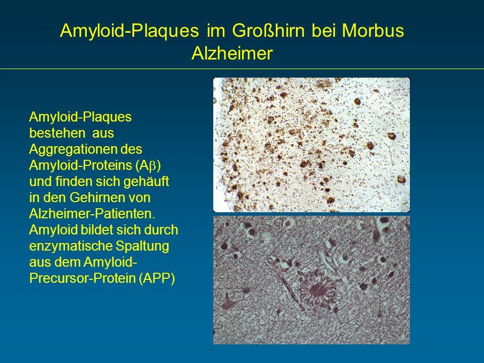 Amyloid-Plaques im Großhirn bei Morbus Alzheimer Amyloid-Plaques bestehen aus Aggregationen des Amyloid-Proteins (A ) und finden sich gehäuft in den G