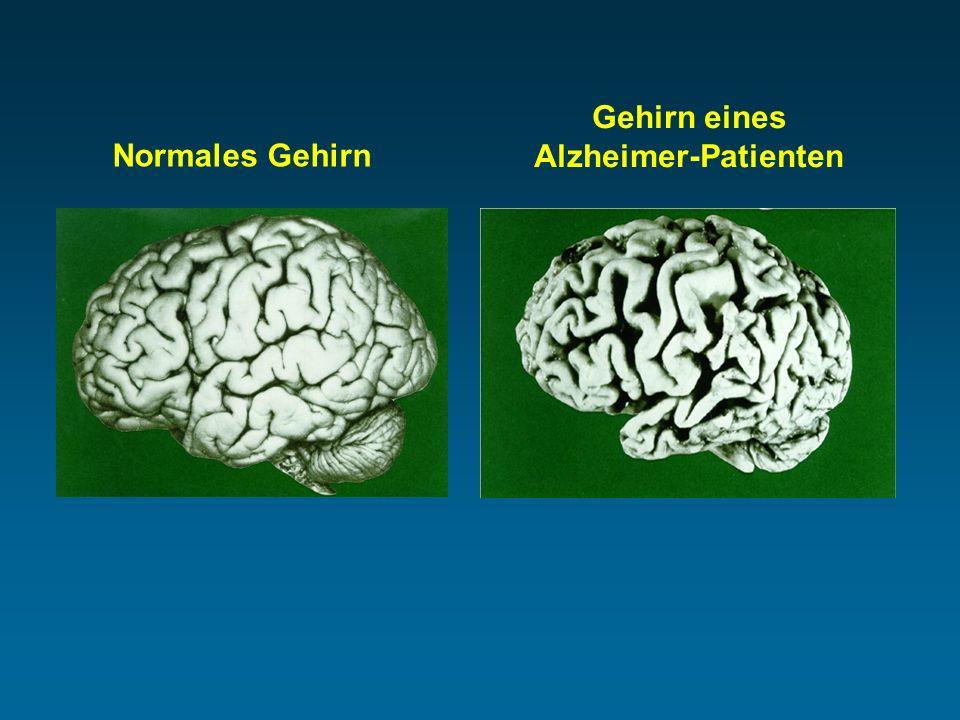 Normales Gehirn Gehirn eines Alzheimer-Patienten
