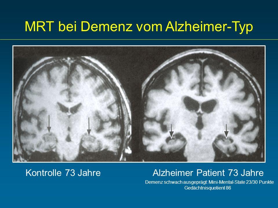 Kontrolle 73 Jahre Alzheimer Patient 73 Jahre Demenz schwach ausgeprägt: Mini-Mental-State 23/30 Punkte Gedächtnisquotient 86 MRT bei Demenz vom Alzhe