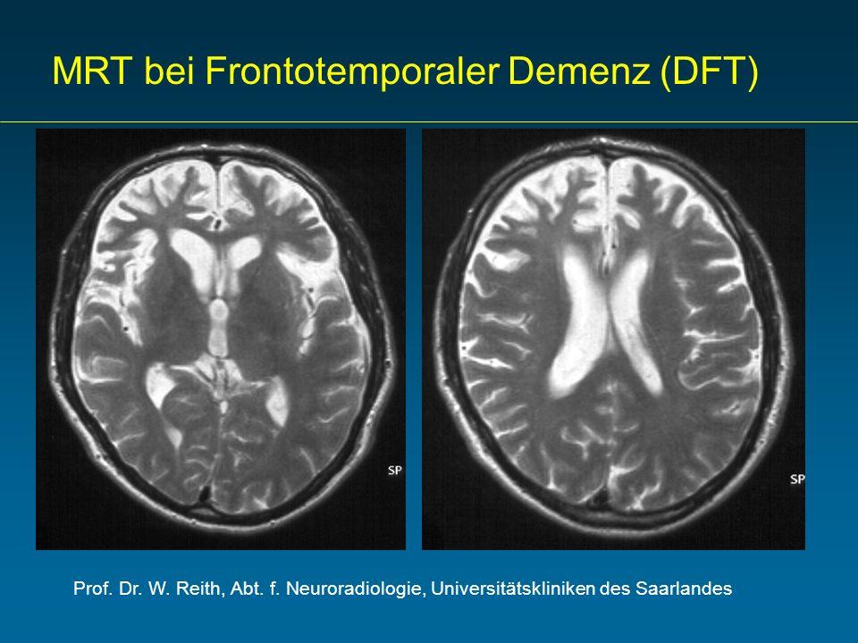Prof. Dr. W. Reith, Abt. f. Neuroradiologie, Universitätskliniken des Saarlandes MRT bei Frontotemporaler Demenz (DFT)