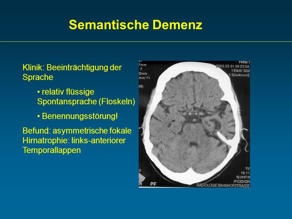 Semantische Demenz Klinik: Beeinträchtigung der Sprache relativ flüssige Spontansprache (Floskeln) Benennungsstörung! Befund: asymmetrische fokale Hir