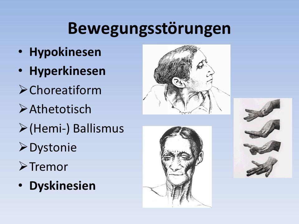 Bewegungsstörungen Hypokinesen Hyperkinesen Choreatiform Athetotisch (Hemi-) Ballismus Dystonie Tremor Dyskinesien