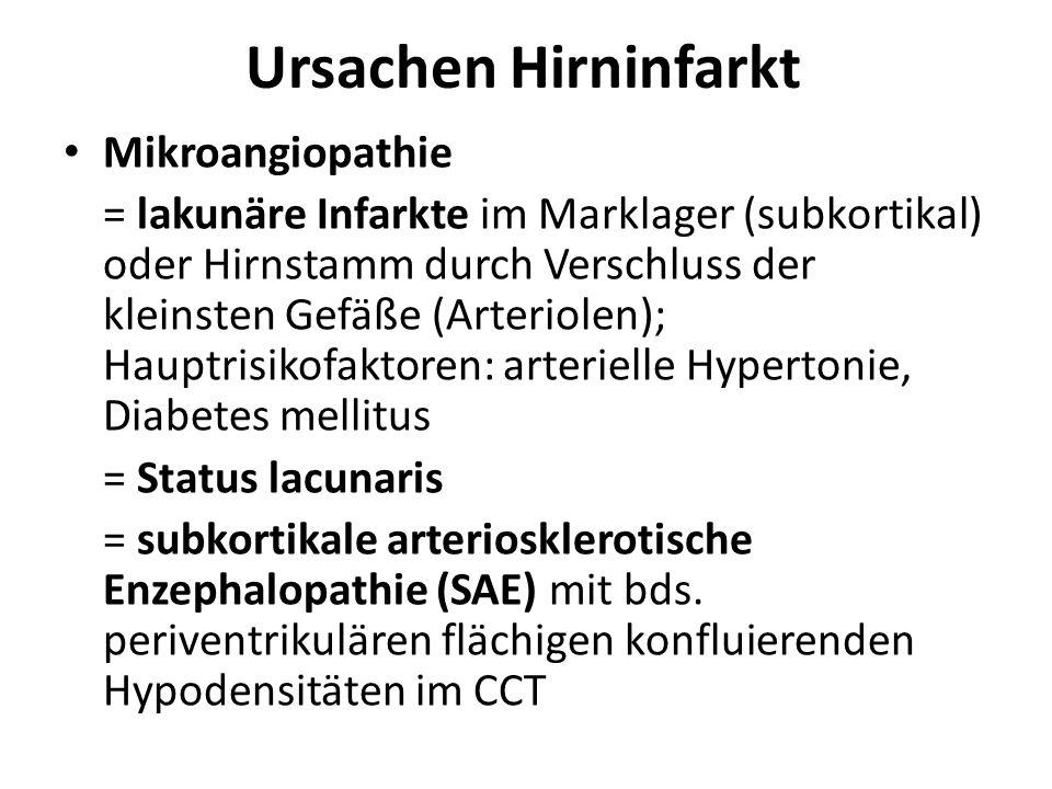 Ursachen Hirninfarkt Mikroangiopathie = lakunäre Infarkte im Marklager (subkortikal) oder Hirnstamm durch Verschluss der kleinsten Gefäße (Arteriolen)