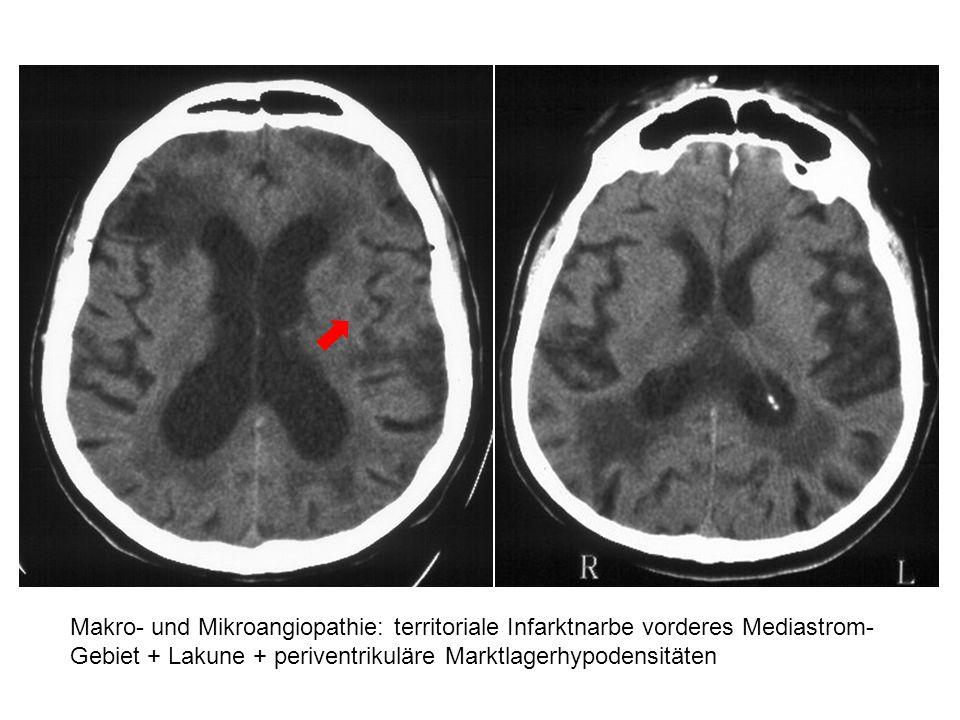 Makro- und Mikroangiopathie: territoriale Infarktnarbe vorderes Mediastrom- Gebiet + Lakune + periventrikuläre Marktlagerhypodensitäten