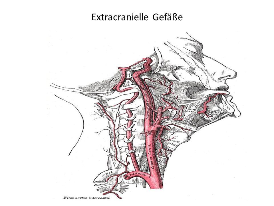 Komplikationen Hirnödem / Hirndruck: cytotoxisches Ödem mit Hirnschwellung Tag 1 – 8 (10) - Gefahr der sekundären Schädigung umliegenden Gewebes und der Einklemmung => Osmotherapie (Glycerin p.o., Mannitol i.v.), BZ / Temp.