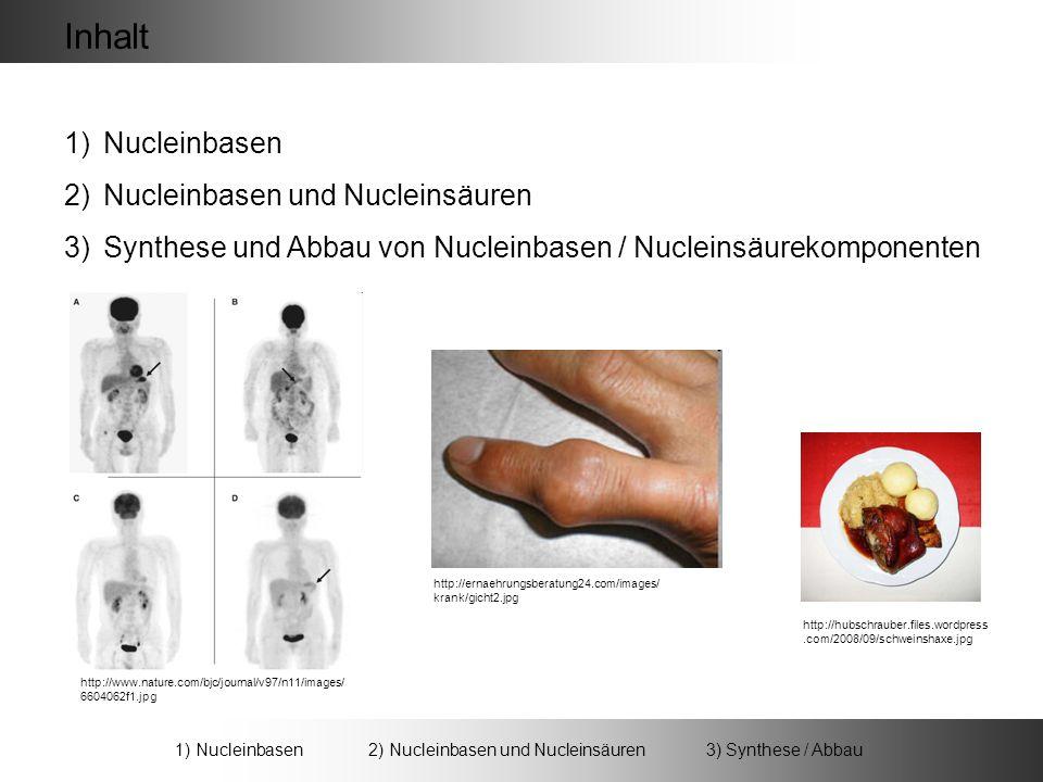 1)Nucleinbasen 2)Nucleinbasen und Nucleinsäuren 3)Synthese und Abbau von Nucleinbasen / Nucleinsäurekomponenten http://ernaehrungsberatung24.com/images/ krank/gicht2.jpg http://www.nature.com/bjc/journal/v97/n11/images/ 6604062f1.jpg Inhalt 1) Nucleinbasen 2) Nucleinbasen und Nucleinsäuren 3) Synthese / Abbau http://hubschrauber.files.wordpress.com/2008/09/schweinshaxe.jpg