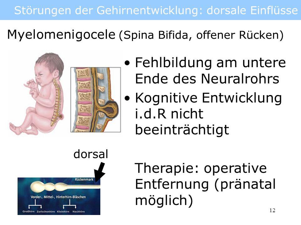 13 Störungen der Gehirnentwicklung: dorsale Einflüsse Hydrocephalus (Wasserkopf) Störung in der Produktion und Resorption der Gehirnflüssigkeit