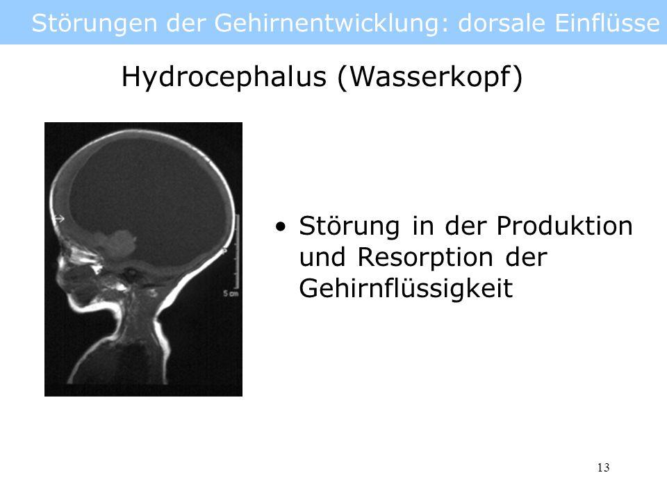 14 Störungen der Gehirnentwicklung: dorsale Einflüsse Hydrocephalus Ursache: 500 ml pro Tag Liquor Wird normalerweise resorbiert Störung durch Hirnhautentzündung, Einblutungen, Fehlbildungen, Tumore