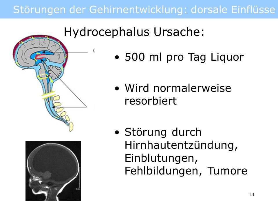 15 Störungen der Gehirnentwicklung: dorsale Einflüsse Hydrocephalus Therapie: Liquorableitung über Drainage (shunt) Cerebrospinalflüssigkeit wird in der Bauchhöhle resorbiert Teilweise pränataler Eingriff möglich