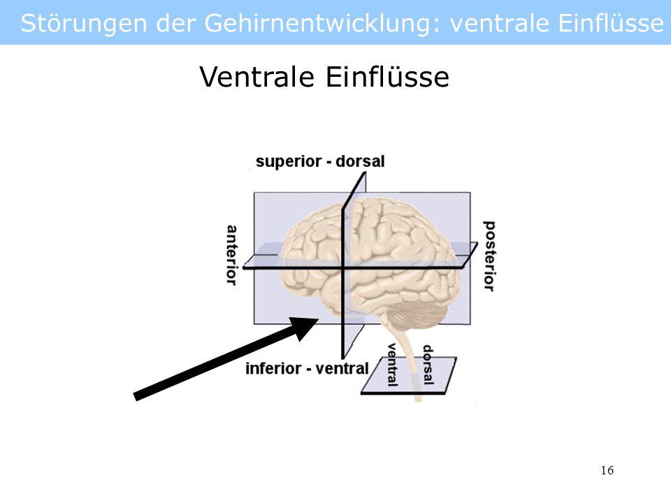 17 Störungen der Gehirnentwicklung: ventrale Einflüsse Hirn teilt sich nicht in zwei Hemisphären Holoprosenzephalie