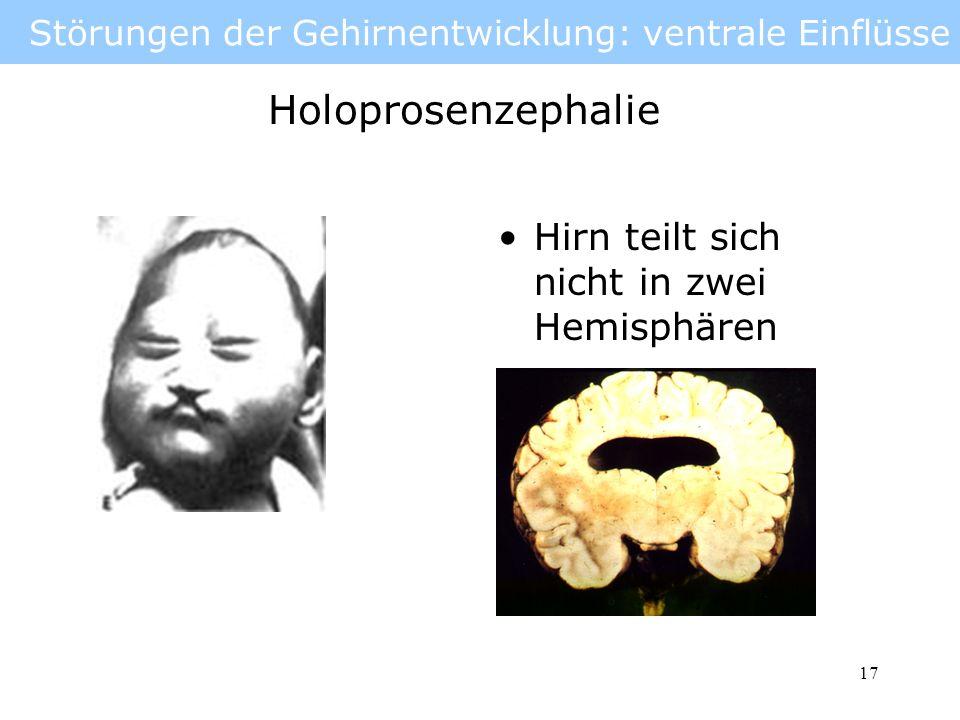 18 Störungen der Gehirnentwicklung: ventrale Einflüsse Holoprosencephalie: Einäugigkeit