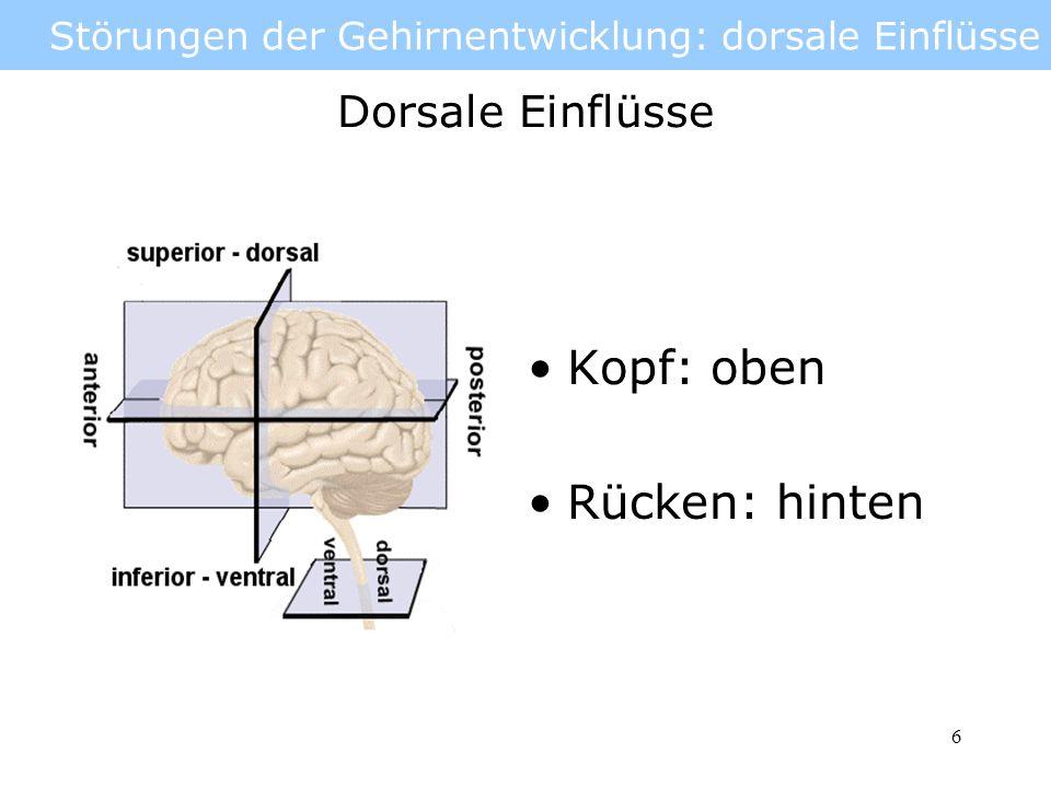 7 Störungen der Gehirnentwicklung: dorsale Einflüsse Schäden an der dorsalen Seite des Neuralrohrs bzw.