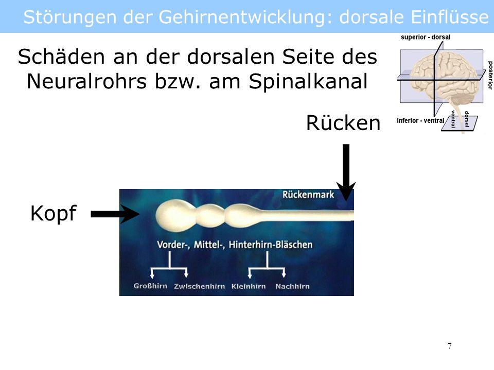 8 Störungen der Gehirnentwicklung: dorsale Einflüsse Anenzephalie (griech.