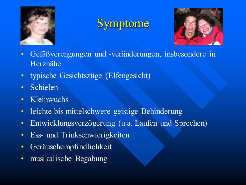 Symptome Gefäßverengungen und -veränderungen, insbesondere in Herznähe typische Gesichtszüge (Elfengesicht) Schielen Kleinwuchs leichte bis mittelschw