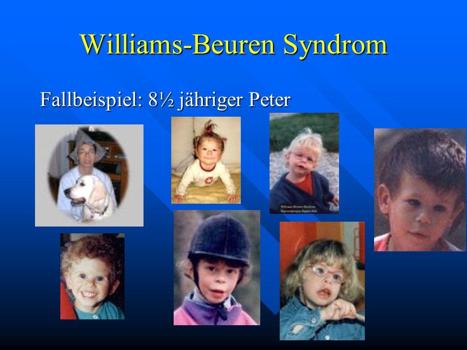 Williams-Beuren Syndrom Fallbeispiel: 8½ jähriger Peter