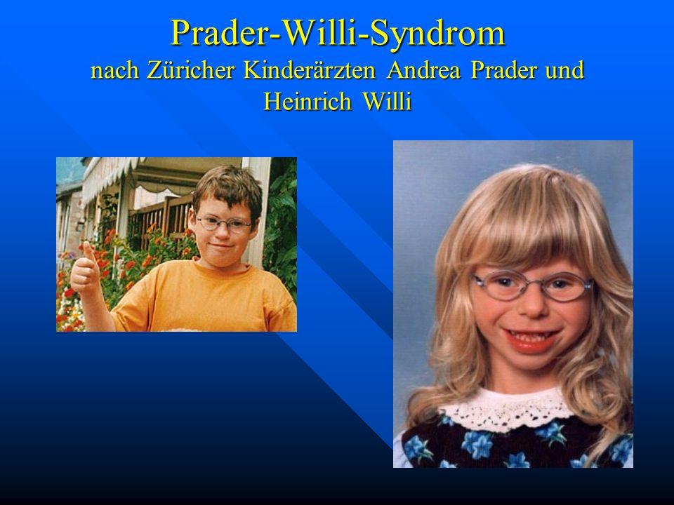 Prader-Willi-Syndrom nach Züricher Kinderärzten Andrea Prader und Heinrich Willi