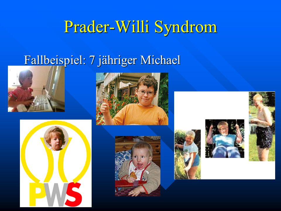 Prader-Willi Syndrom Fallbeispiel: 7 jähriger Michael