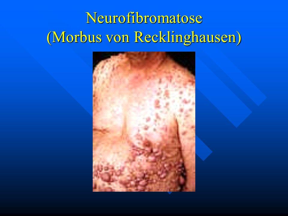 Neurofibromatose (Morbus von Recklinghausen)