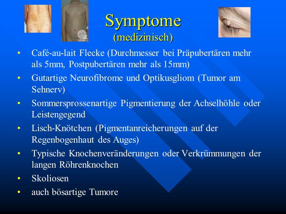 Symptome (medizinisch) Café-au-lait Flecke (Durchmesser bei Präpubertären mehr als 5mm, Postpubertären mehr als 15mm) Gutartige Neurofibrome und Optik