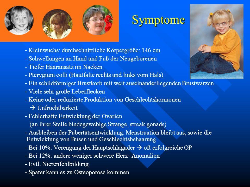 - Kleinwuchs: durchschnittliche Körpergröße: 146 cm - Schwellungen an Hand und Fuß der Neugeborenen - Tiefer Haaransatz im Nacken - Pterygium colli (H