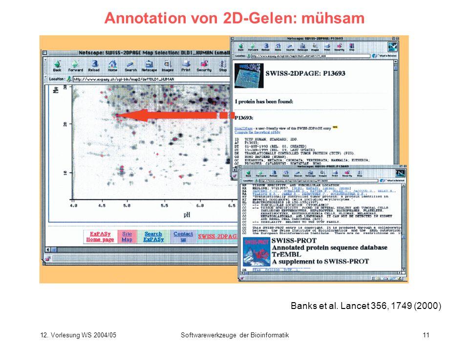 12. Vorlesung WS 2004/05Softwarewerkzeuge der Bioinformatik11 Annotation von 2D-Gelen: mühsam Banks et al. Lancet 356, 1749 (2000)