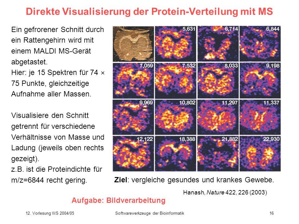 12. Vorlesung WS 2004/05Softwarewerkzeuge der Bioinformatik16 Direkte Visualisierung der Protein-Verteilung mit MS Ein gefrorener Schnitt durch ein Ra