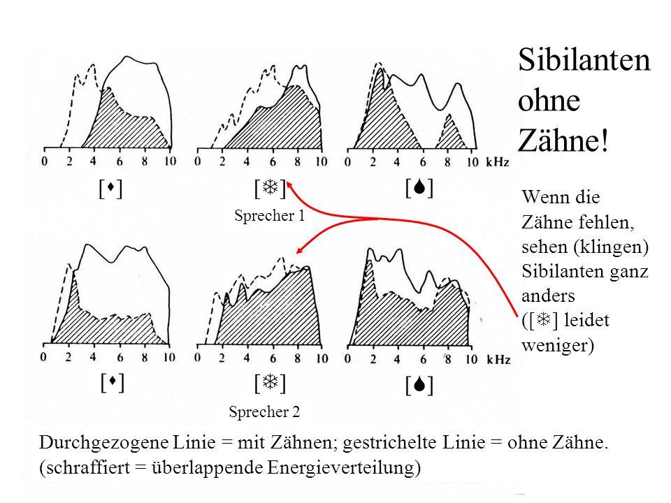 Sibilanten Frikative mit zusätzlichem Rauschen durch Turbulenz an den Zähnen = Sibilanten: / s z S Z / Modell für Sibilantenproduktion primäre Quelle
