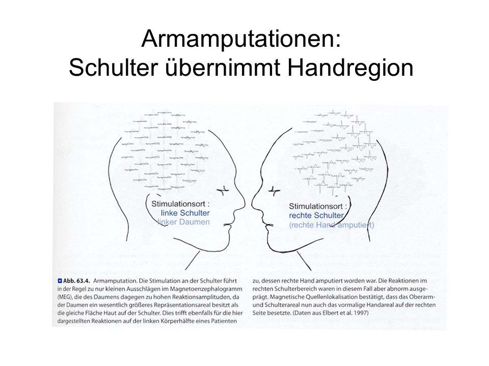 Armamputationen: Schulter übernimmt Handregion