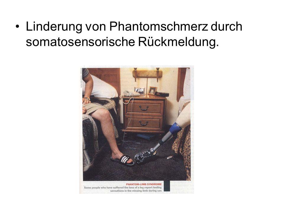 Linderung von Phantomschmerz durch somatosensorische Rückmeldung.