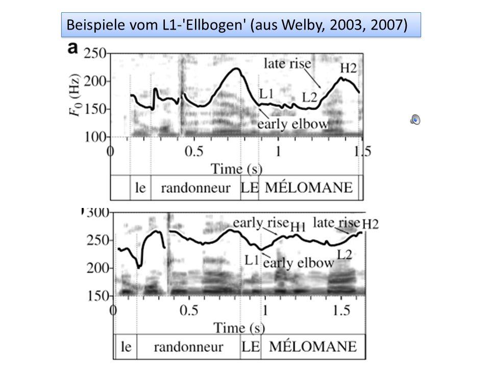L H L H* Beispiele vom prototypischen LHLH einer AP (aus Welby, 2003)