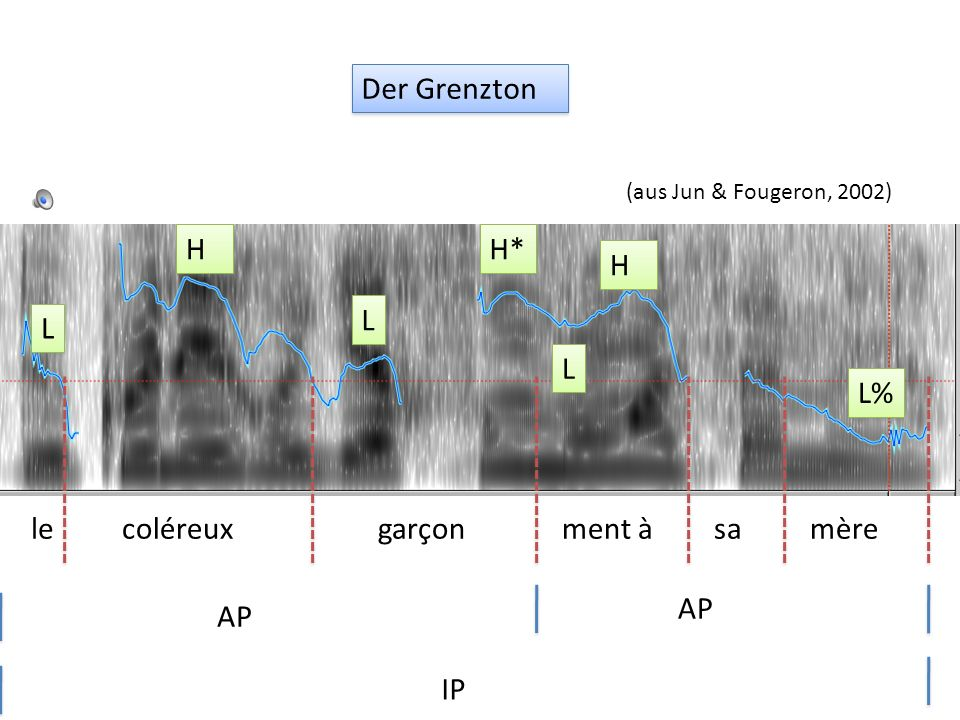 AP ist final in der Intonationsphrase sera installé mercredi L H AP L% Jun & Fougeron (2002) Der Grenzton sera installé mercredi L H L H* AP L% sera i