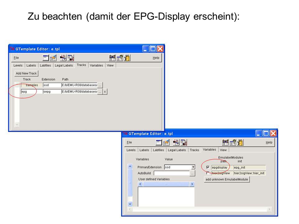Zu beachten (damit der EPG-Display erscheint):