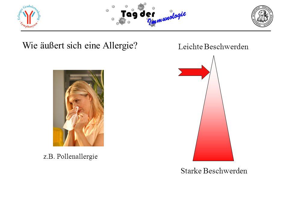 Tag der Immunologie Wie äußert sich eine Allergie? Leichte Beschwerden Starke Beschwerden z.B. Pollenallergie