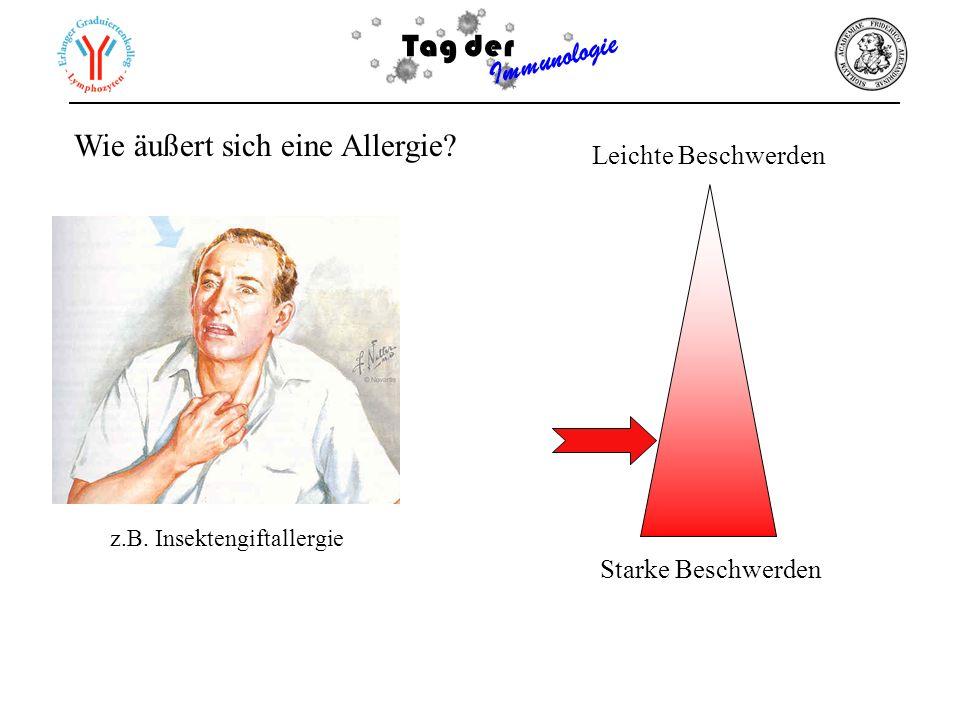 Tag der Immunologie Wie äußert sich eine Allergie? Leichte Beschwerden Starke Beschwerden z.B. Insektengiftallergie
