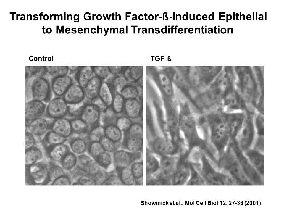 Control TGF-ß Transforming Growth Factor-ß-Induced Epithelial to Mesenchymal Transdifferentiation Bhowmick et al., Mol Cell Biol 12, 27-36 (2001)