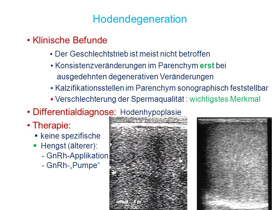 Hodendegeneration Klinische Befunde Der Geschlechtstrieb ist meist nicht betroffen Konsistenzveränderungen im Parenchym erst bei ausgedehnten degenera