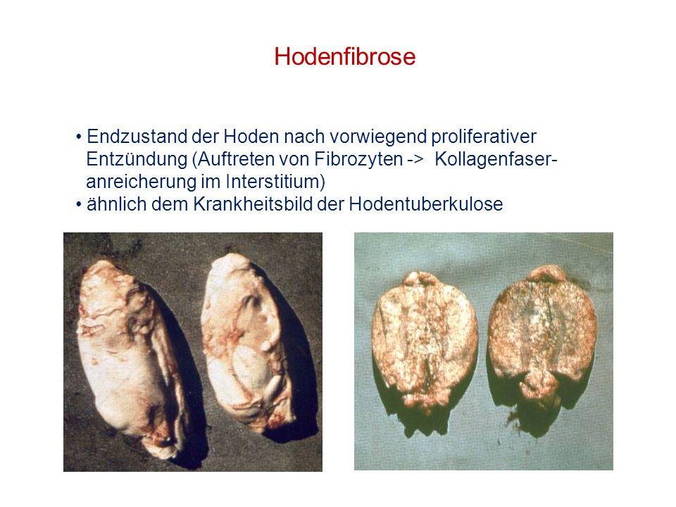 Hoden sind kleiner und härter als normal Hodenfibrose Endzustand der Hoden nach vorwiegend proliferativer Entzündung (Auftreten von Fibrozyten -> Koll