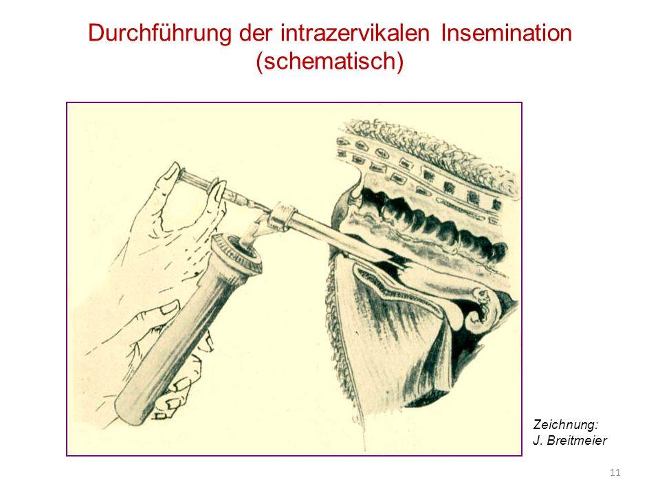 Durchführung der intrazervikalen Insemination (schematisch) Zeichnung: J. Breitmeier 11