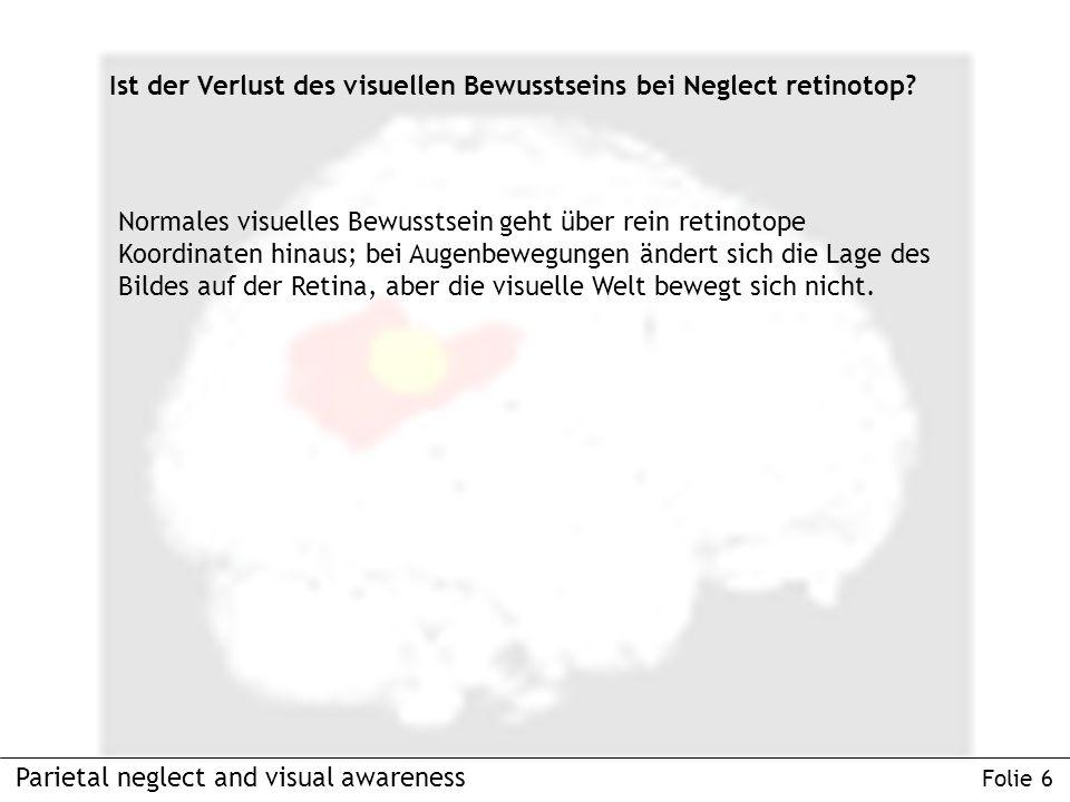 Parietal neglect and visual awareness Folie 6 Ist der Verlust des visuellen Bewusstseins bei Neglect retinotop.