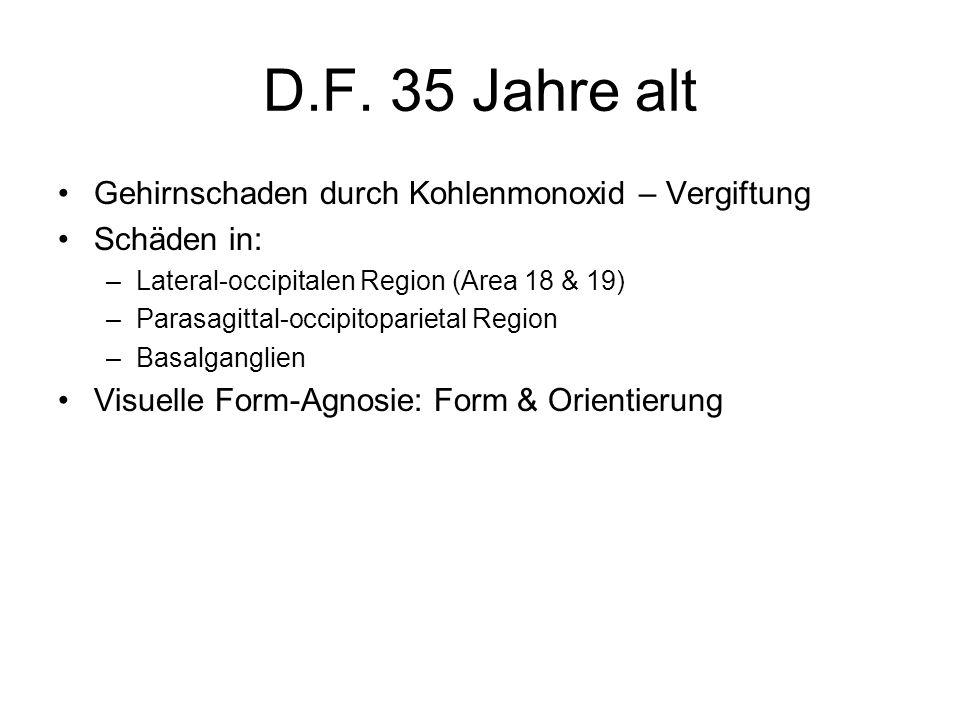 D.F. 35 Jahre alt Gehirnschaden durch Kohlenmonoxid – Vergiftung Schäden in: –Lateral-occipitalen Region (Area 18 & 19) –Parasagittal-occipitoparietal
