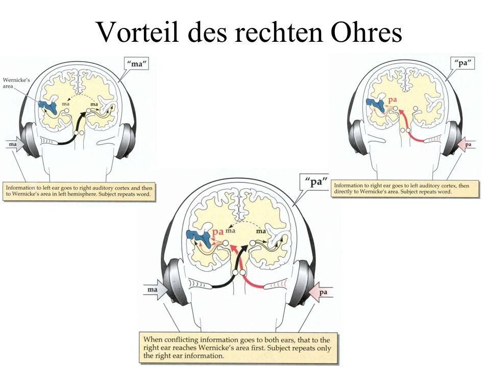 PET Sprachbereiche im Kortex Motorischer Kortex