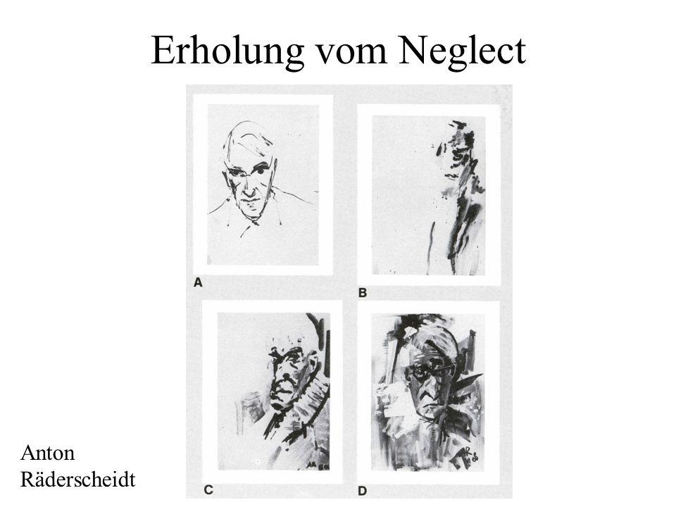 Neglect Beim Hemi-Neglect vernachlässigen Patienten die linke Hälfte des Gesichtsfelds, und oftmals auch die linke Hälfte von Objekten in der rechten