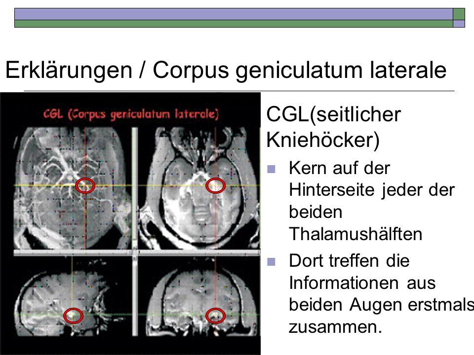 Erklärungen / Corpus geniculatum laterale CGL(seitlicher Kniehöcker) Kern auf der Hinterseite jeder der beiden Thalamushälften Dort treffen die Inform