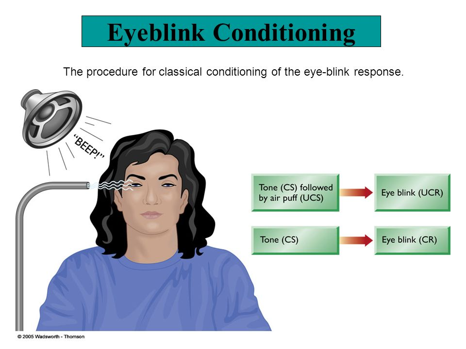Eyeblink Conditioning The procedure for classical conditioning of the eye-blink response.