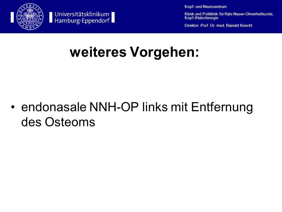 Kopf- und Neurozentrum Klinik und Poliklinik für Hals-Nasen-Ohrenheilkunde, Kopf-/Halschirurgie Direktor: Prof.