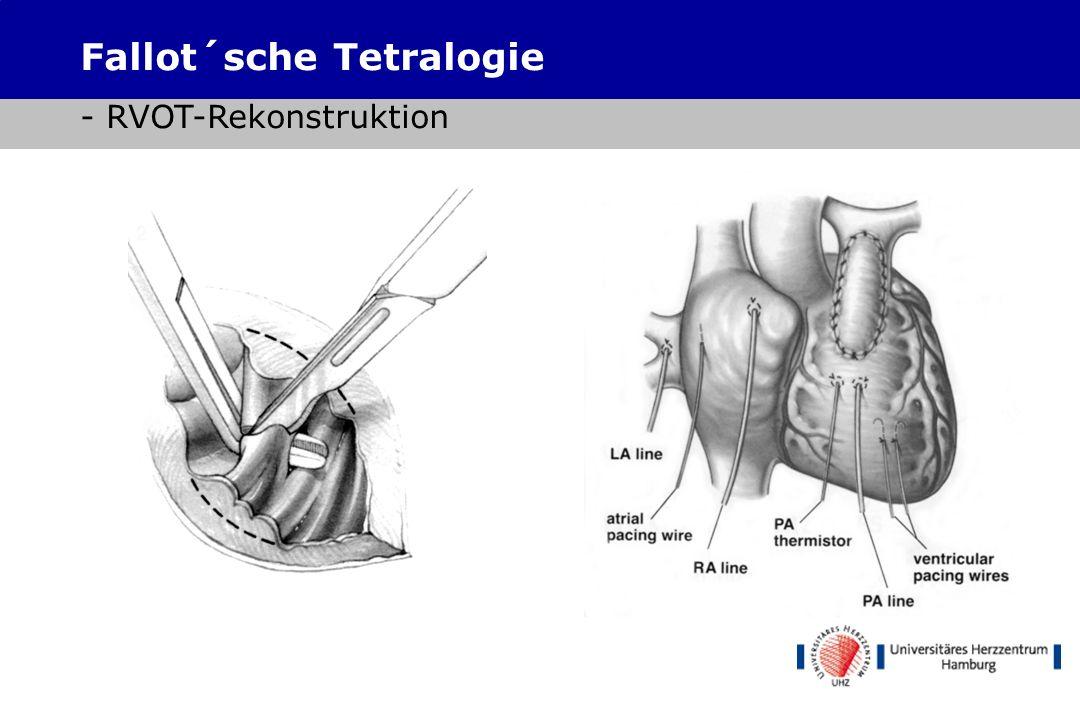 RVOT- Inzision Defektinspektion 1 3 2 Fallot´sche Tetralogie - VSD-Verschluss transventrikulär / RVOT-Rekonstruktion